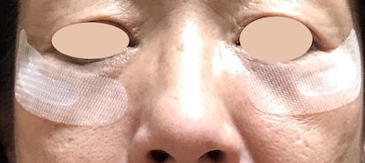 ヒアロディープパッチの口コミ~効果が高いのは目元、口元どっちがおすすめ?【50代が検証】