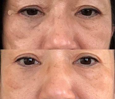 目の下にできた年齢サイン~マイクロニードルは効果ある?実際に試して検証!