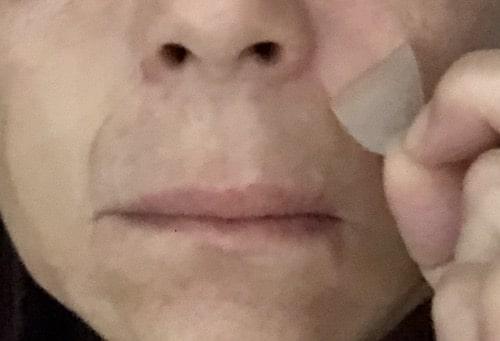 プレミアムリンクルパッチ(リキュペリ)口コミ〜効果はどうなの?ほうれい線と口元に試した検証結果をレビュー!