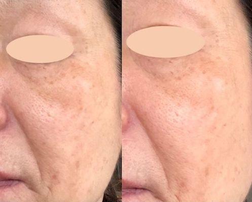 ニードルリフトクリーム(ヤーマン)口コミ〜効果はある?年齢肌に悩む50代主婦のリアルレビュー!