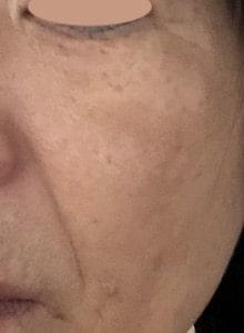 lujoニードルセラム【口コミ】効果はある?痛みは?〜50代主婦が実際に使ったレビュー!