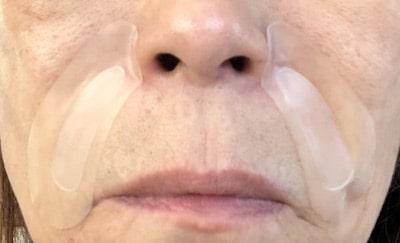 ピンデレラ(マイクロニードルパッチ)の口コミ〜使用感や効果は?50代が実際に試してみた!